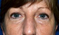 Facial Surgery Case 521 - Eyelid Surgery - Before