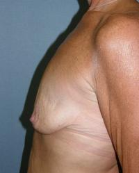 Breast Surgery Case 561 - Breast Lift with Augmentation - Before