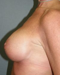 Breast Surgery Case 561 - Breast Lift with Augmentation - After