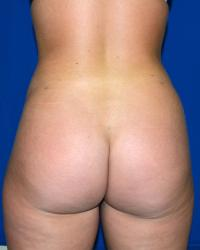 Body Contouring Case 591 - Buttock Lift, Abdomen, Back, Flanks, Hips, Waist - After