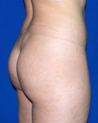 Body Contouring Case 591 - Buttock Lift, Abdomen, Back, Flanks, Hips, Waist - Before