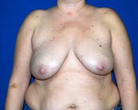 Breast Reconstruction Case 721 - Two-Stage Reconstruction - Before