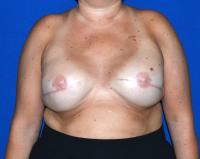 Breast Reconstruction Case 721 - Two-Stage Reconstruction - After