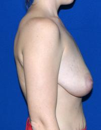 Breast Surgery Case 751 - Breast Lift with Augmentation - Before