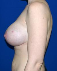 Breast Surgery Case 751 - Breast Lift with Augmentation - After