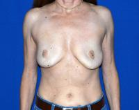Breast Surgery Case 761 - Breast Implant Revision - Before