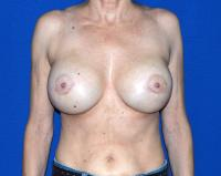 Breast Surgery Case 761 - Breast Implant Revision - After