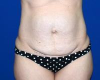 Body Contouring Case 811 - Tummy Tuck, Flanks, Waist - Before