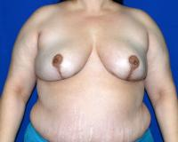 Breast Surgery Case 861 - Breast Reduction - After