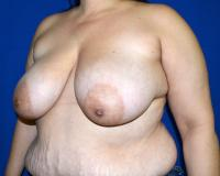 Breast Surgery Case 861 - Breast Reduction - Before