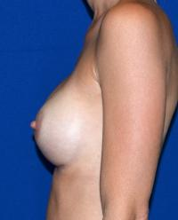 Breast Surgery Case 901 - Breast Augmentation - After