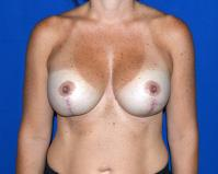 Breast Surgery Case 921 - Breast Lift with Augmentation - After