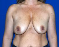 Breast Surgery Case 921 - Breast Lift with Augmentation - Before