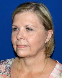 Facial Surgery Case 941 - Face Lift - After