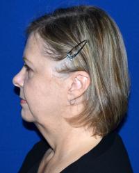 Facial Surgery Case 941 - Face Lift - Before