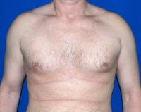 For Men Case 971 - Male Breast Reduction - Before