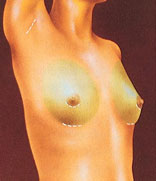 Breast Augmentation Johnson City