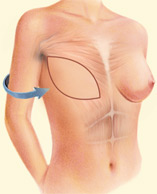 Breast Reconstruction Johnson City