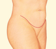 Tummy Tuck Johnson City