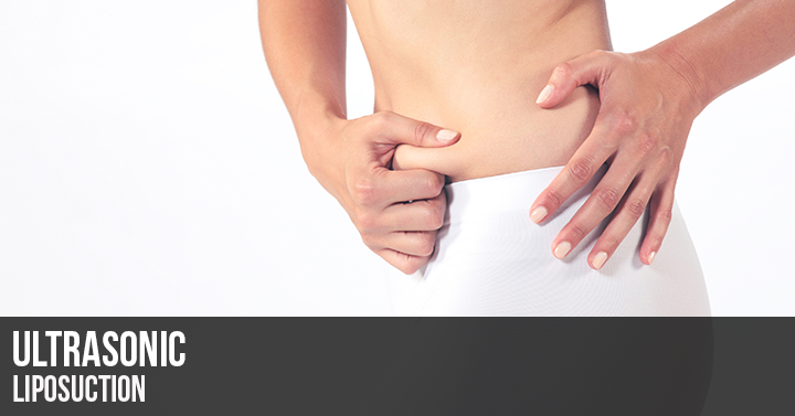 Ultrasonic Liposuction Tennessee